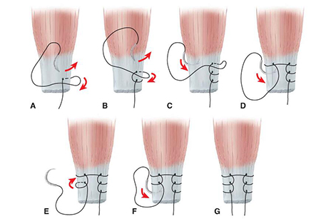 Valgus Knee-Medial Ligament Advancement