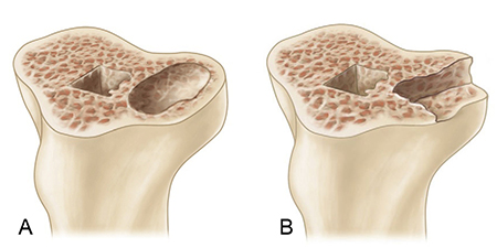 Valgus Knee (VII) Management Of Bone Defect