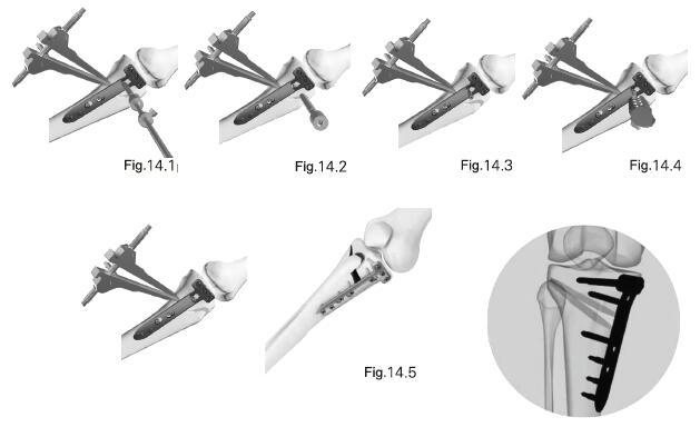 Coforline® Periarticular Locking Plate System