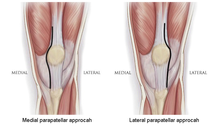 Valgus Knee(I)-Approach