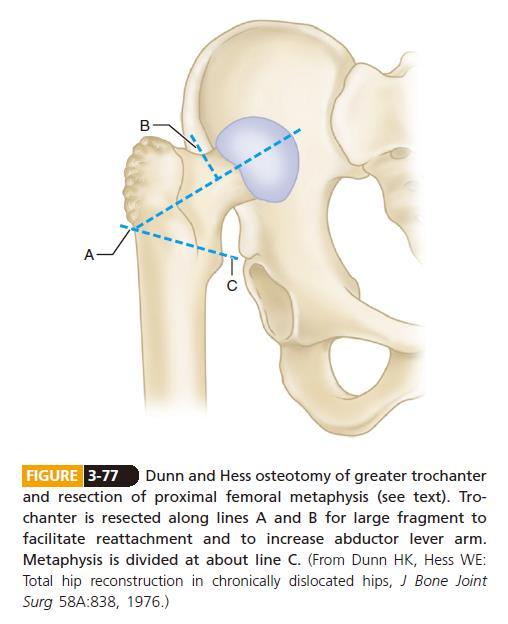 Surgery of DDH of femur