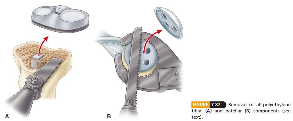 Revision total knee arthroplasty--component removal