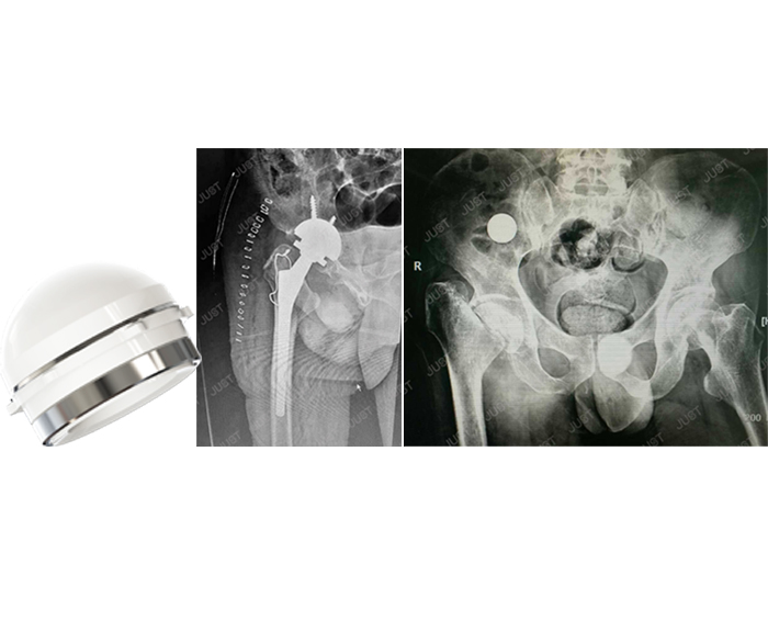 JUST X-Ray picture set- Hip joint