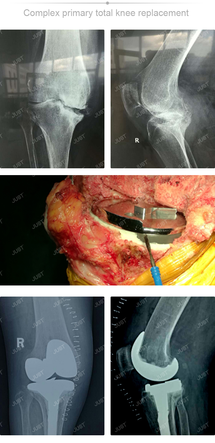 JUST X-Ray picture set- Knee joint
