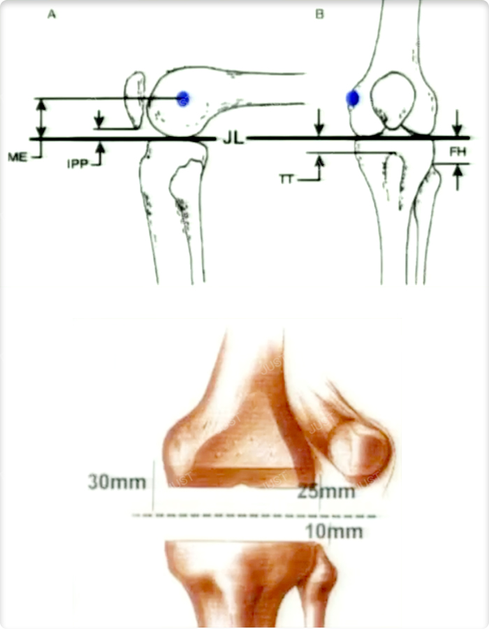 7 steps of knee revision surgery (3)