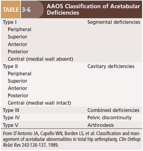 Reconstruction of acetabular deficiencies AAOS classification