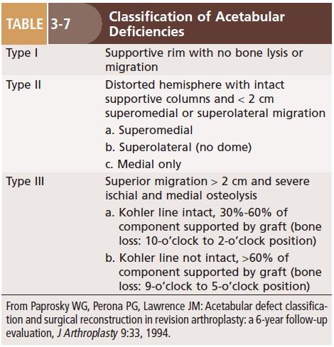 Reconstruction of acetabular deficiencies- Paprosky classification