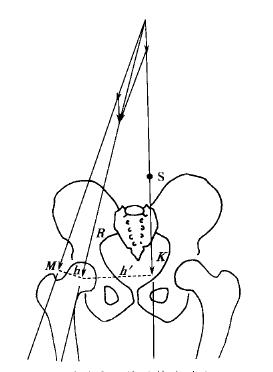 Hip Joint Mechanics Analysis