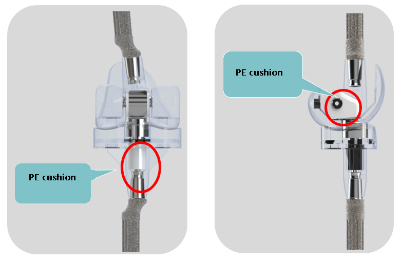 Rotating hinge: a simple and effective solution for complex knee arthroplasty