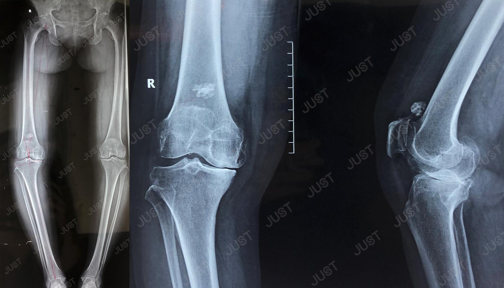Case of SKII CR High Flexion Total Knee System