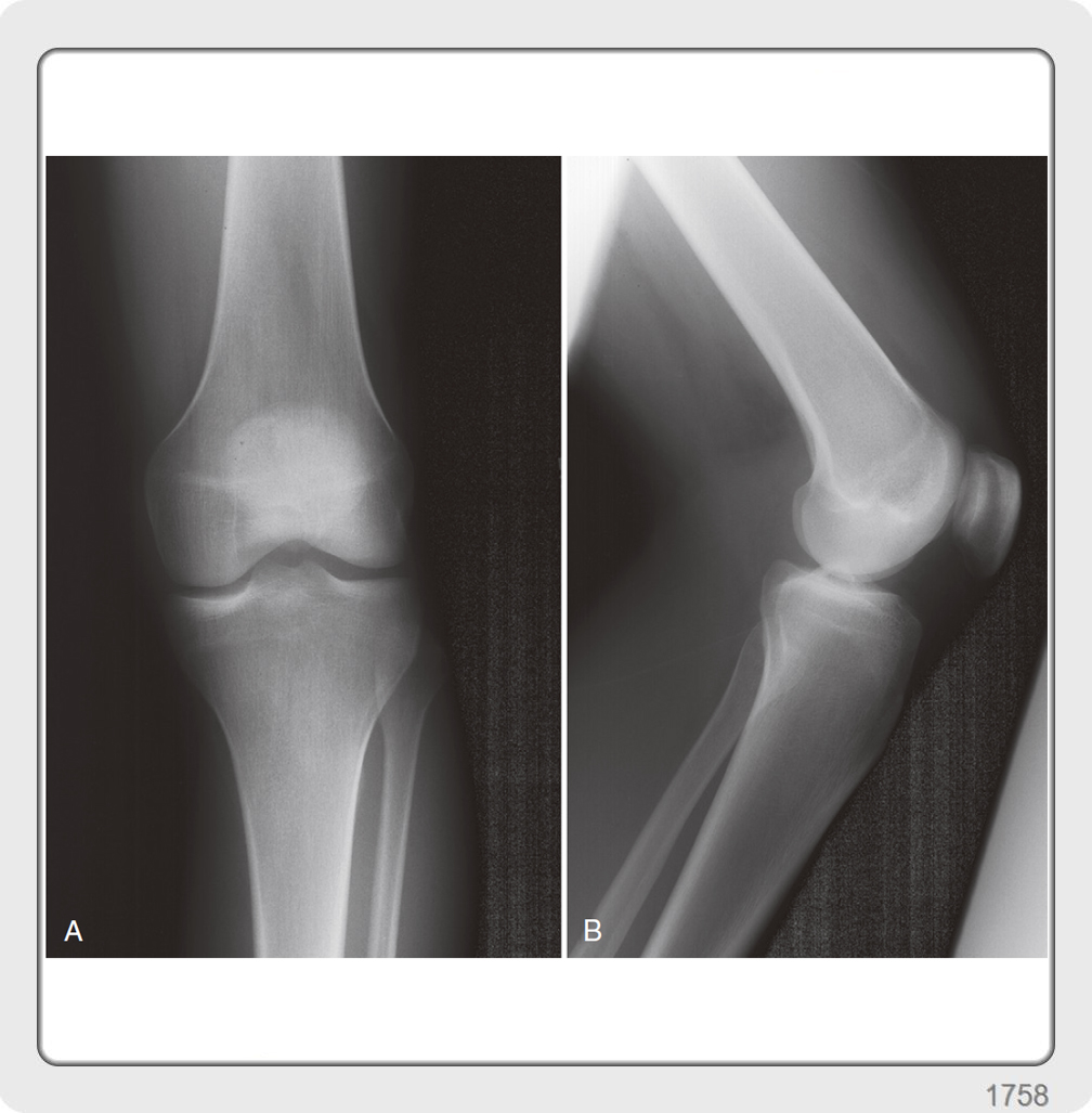 Bony architecture of knee joint- tibia, patella