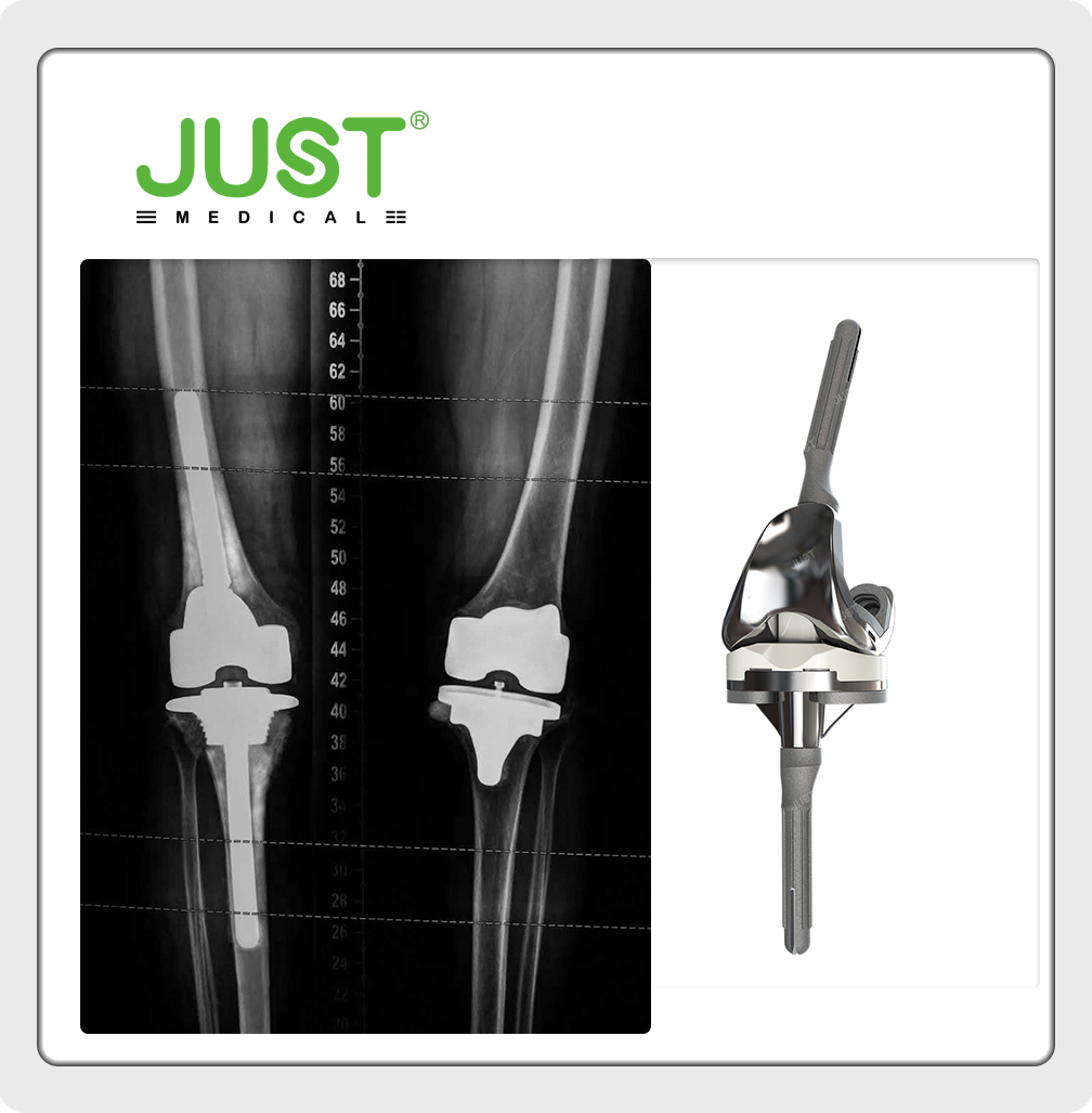 When do we need constrained condylar knee joint prosthesis?