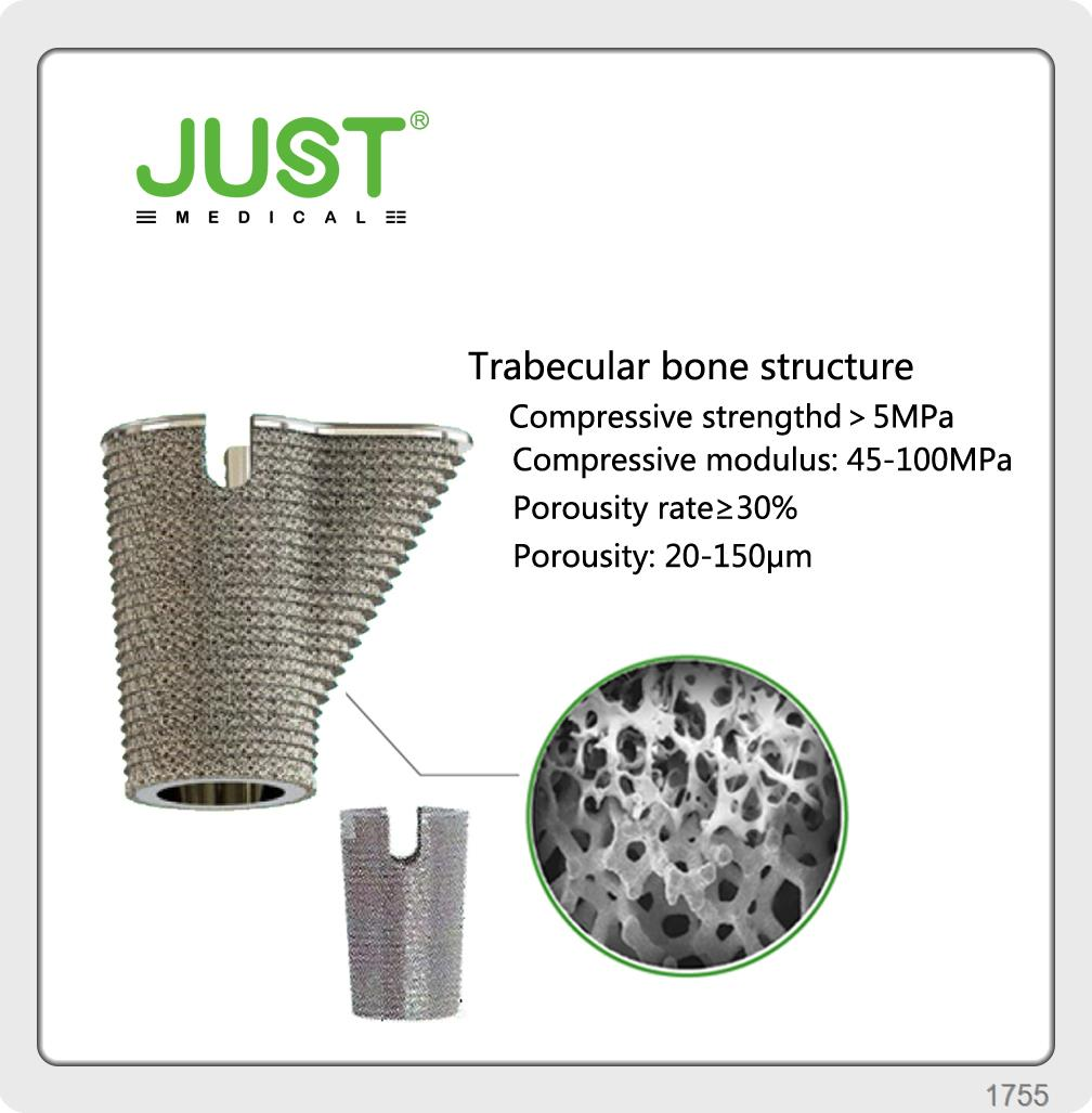 3D SEE Trabecular Modular femoral stem artificial hip joint for TKA