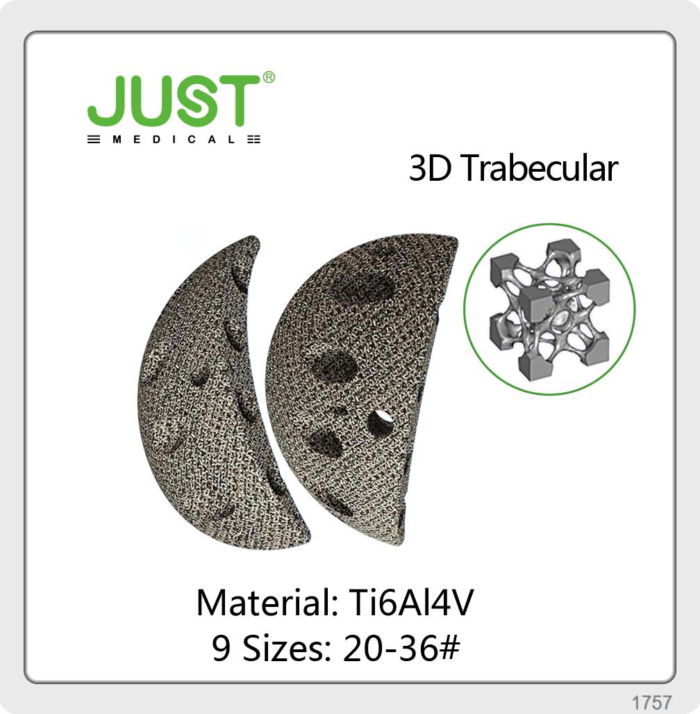 3D Printing Customized Joint Prothesis Products